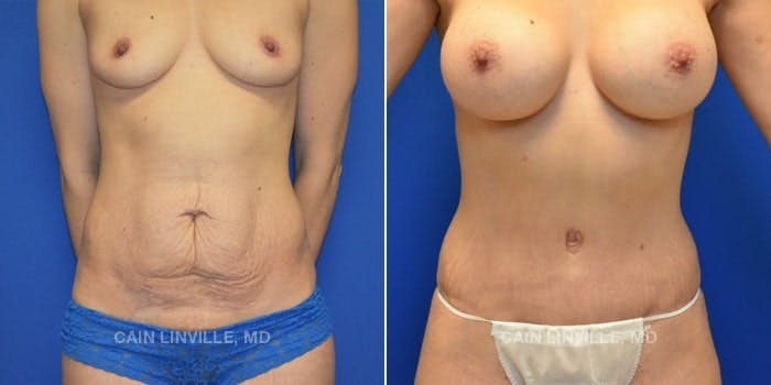 Tummy Tuck Gallery - Patient 8522687 - Image 1