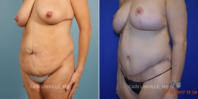 Tummy Tuck Gallery - Patient 8522692 - Image 1