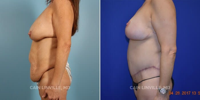 Tummy Tuck Gallery - Patient 8522692 - Image 2