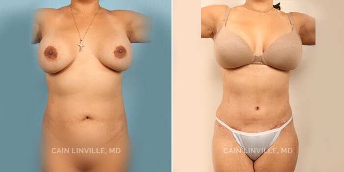Tummy Tuck Gallery - Patient 8522703 - Image 1