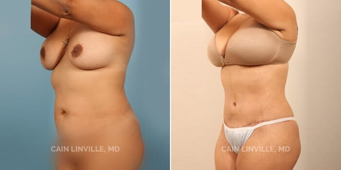 Tummy Tuck Gallery - Patient 8522703 - Image 2