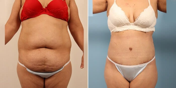 Tummy Tuck Gallery - Patient 8522715 - Image 1