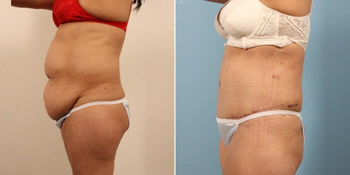 Tummy Tuck Gallery - Patient 8522715 - Image 2