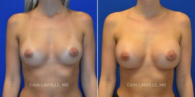 Breast Augmentation Gallery - Patient 8522753 - Image 1