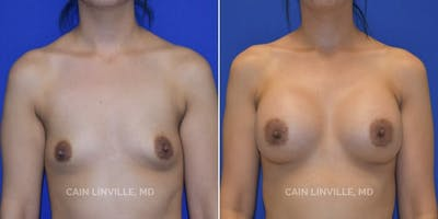 Breast Augmentation Gallery - Patient 8522784 - Image 1