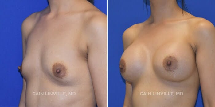 Breast Augmentation Gallery - Patient 8522784 - Image 2