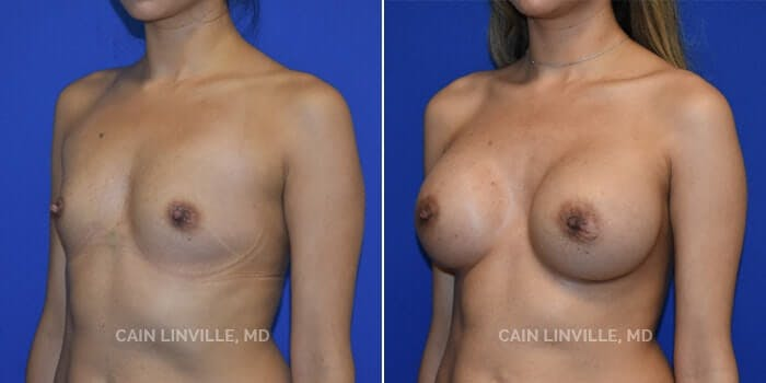 Breast Augmentation Gallery - Patient 8522816 - Image 2