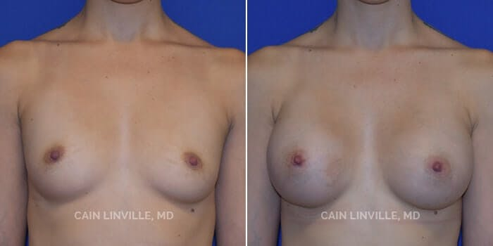 Breast Augmentation Gallery - Patient 8522833 - Image 1