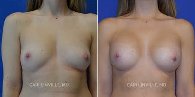 Breast Augmentation Gallery - Patient 8522845 - Image 1
