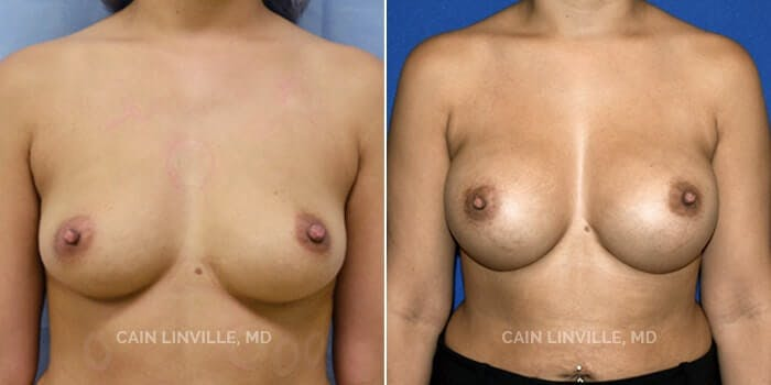Breast Augmentation Gallery - Patient 8522879 - Image 1