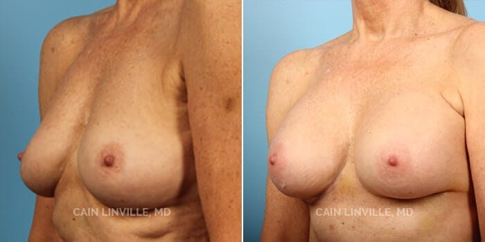 Breast Augmentation Gallery - Patient 8522899 - Image 2
