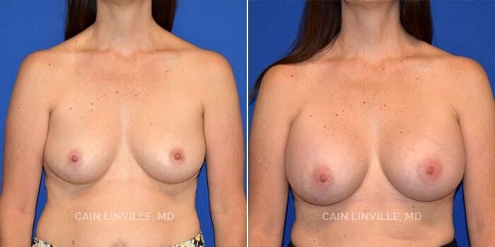 Breast Augmentation Gallery - Patient 8522925 - Image 1