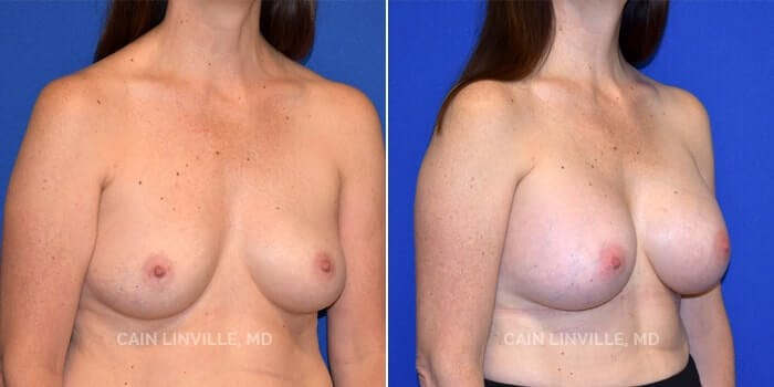 Breast Augmentation Gallery - Patient 8522925 - Image 2