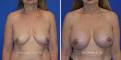 Breast Augmentation Gallery - Patient 8522938 - Image 1