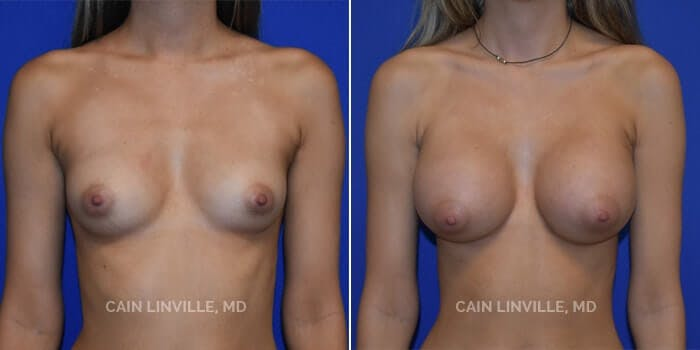 Breast Augmentation Gallery - Patient 8522954 - Image 1