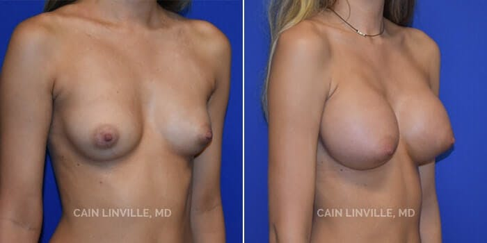Breast Augmentation Gallery - Patient 8522954 - Image 2