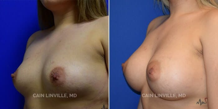 Breast Augmentation Gallery - Patient 8522975 - Image 2
