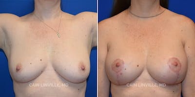 Breast Augmentation With Lift Gallery - Patient 8523288 - Image 1
