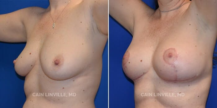 Breast Augmentation With Lift Gallery - Patient 8523288 - Image 2