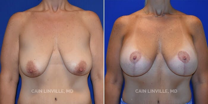 Breast Augmentation With Lift Gallery - Patient 8523308 - Image 1