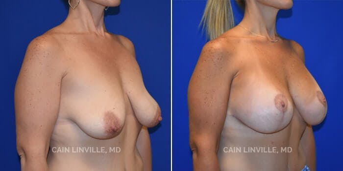 Breast Augmentation With Lift Gallery - Patient 8523308 - Image 2