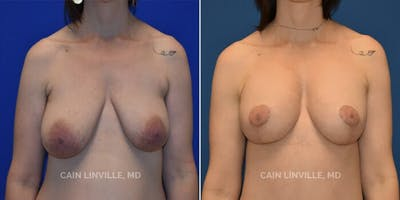 Breast Augmentation With Lift Gallery - Patient 8523320 - Image 1