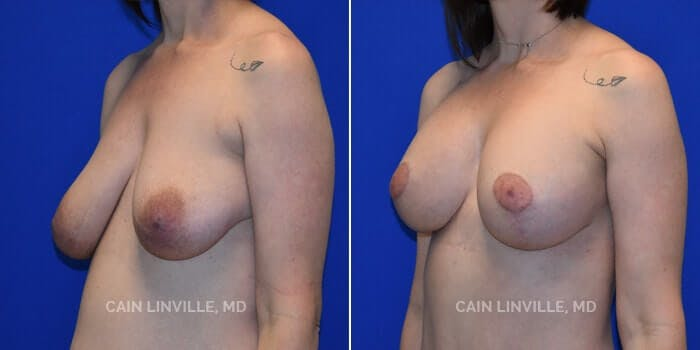Breast Augmentation With Lift Gallery - Patient 8523320 - Image 2