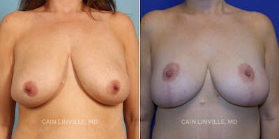 Breast Reduction Gallery - Patient 8523337 - Image 1