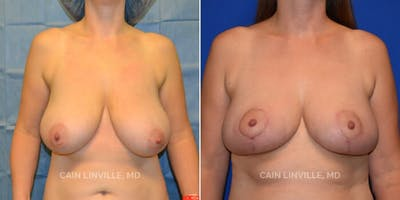 Breast Reduction Gallery - Patient 8523357 - Image 1