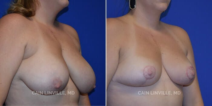 Breast Reduction Gallery - Patient 8523367 - Image 2
