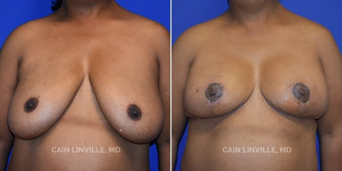 Breast Reduction Gallery - Patient 8523385 - Image 1