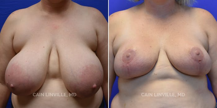 Breast Reduction Gallery - Patient 8523406 - Image 1