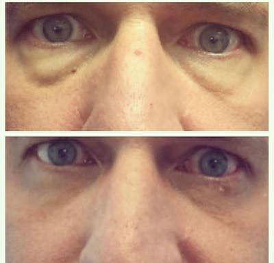 Lower Blepharoplasty Gallery - Patient 8523443 - Image 1