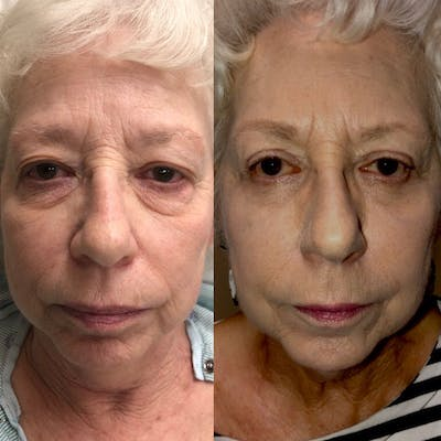 Lower Blepharoplasty Gallery - Patient 8523454 - Image 1