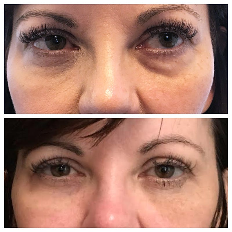 Lower Blepharoplasty Gallery - Patient 8523471 - Image 1