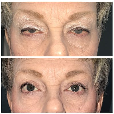 Ptosis Gallery - Patient 8523489 - Image 1