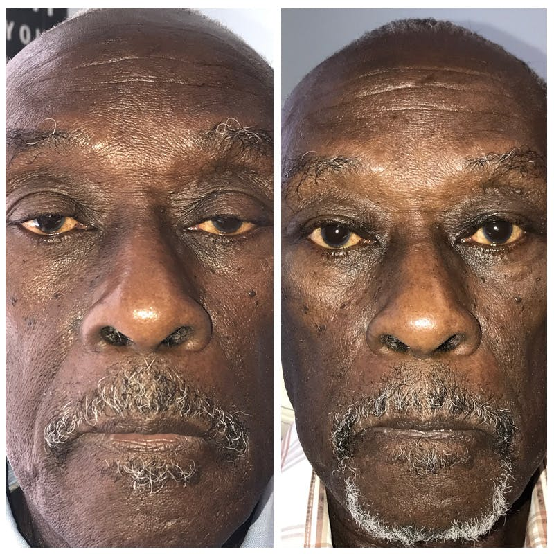 Ptosis Gallery - Patient 8523501 - Image 1