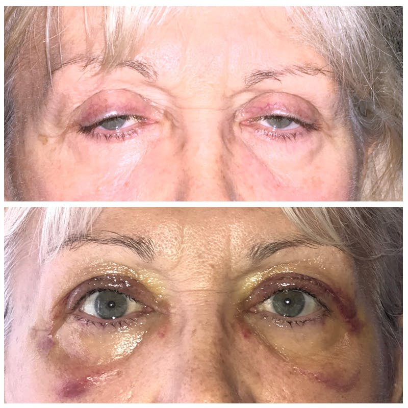 Ptosis Gallery - Patient 8523507 - Image 1