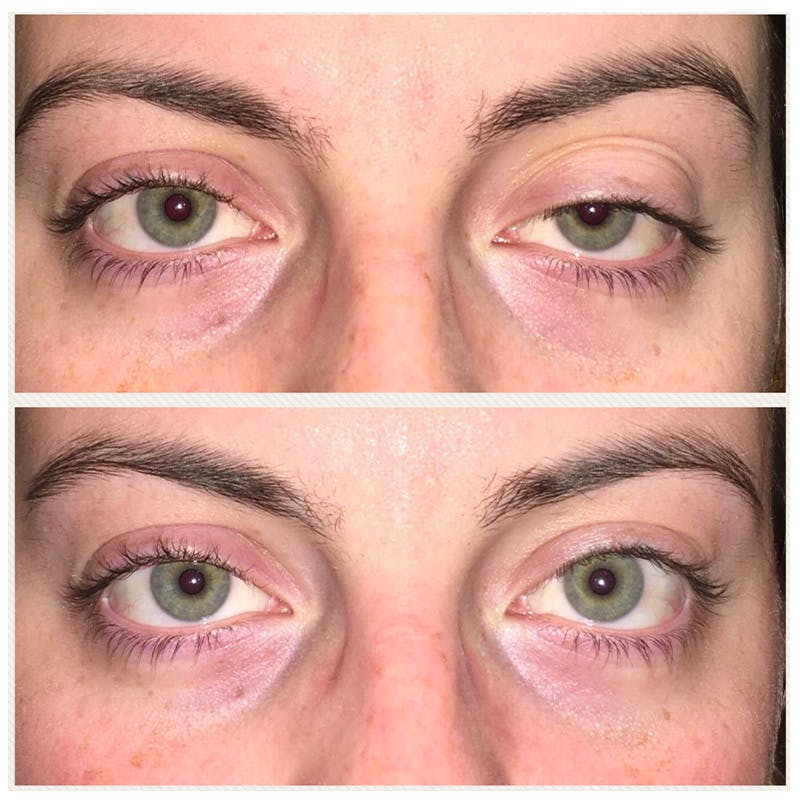 Ptosis Gallery - Patient 8523518 - Image 1