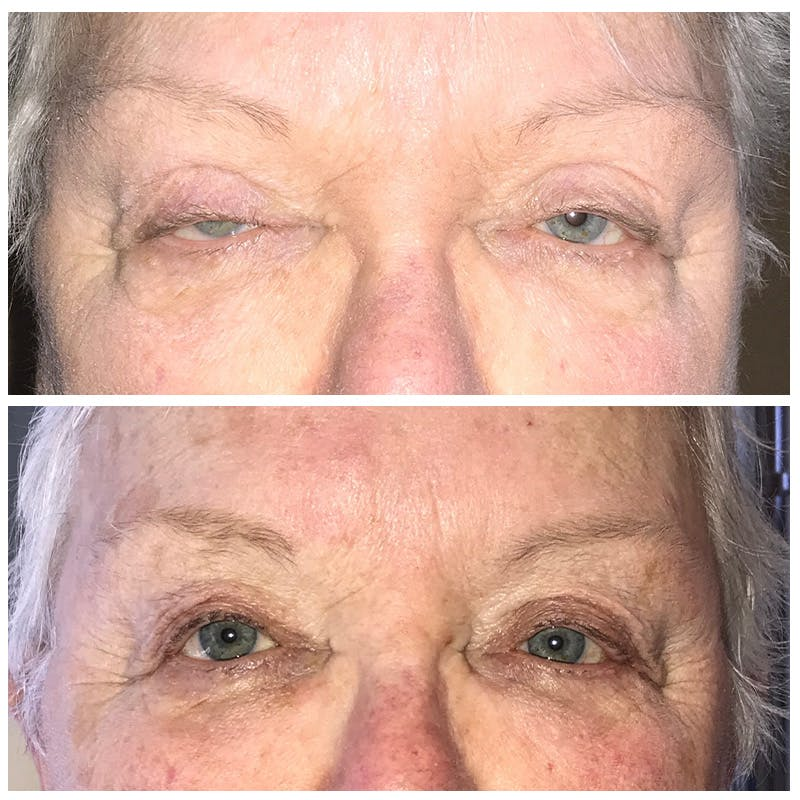 Ptosis Gallery - Patient 8523532 - Image 1
