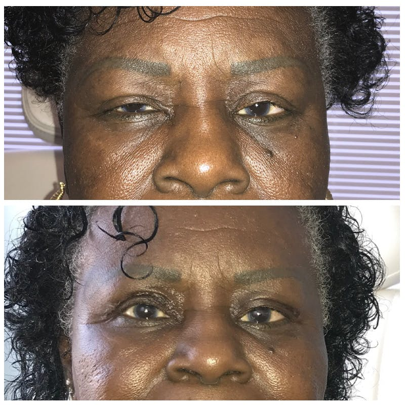 Ptosis Gallery - Patient 8523537 - Image 1