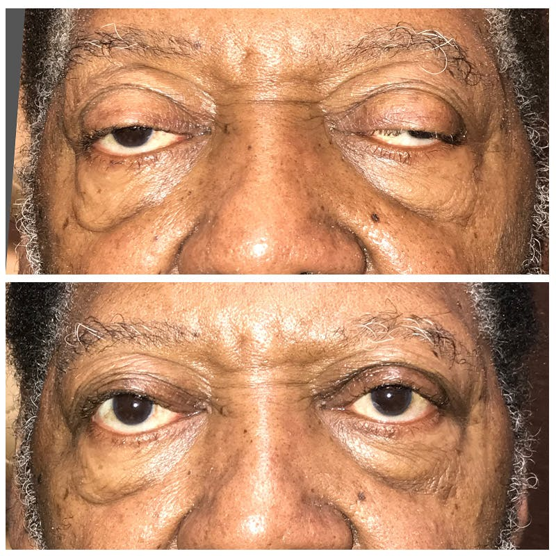 Ptosis Gallery - Patient 8523542 - Image 1