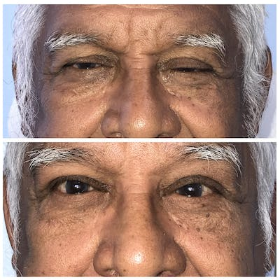 Ptosis Gallery - Patient 8523554 - Image 1