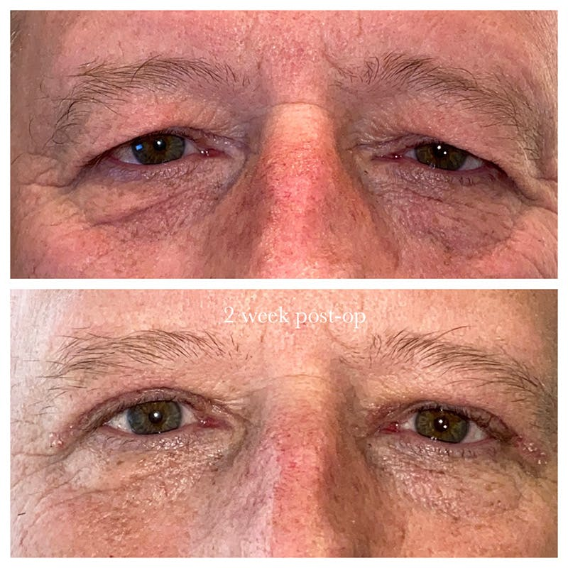 Ptosis Gallery - Patient 8523558 - Image 1