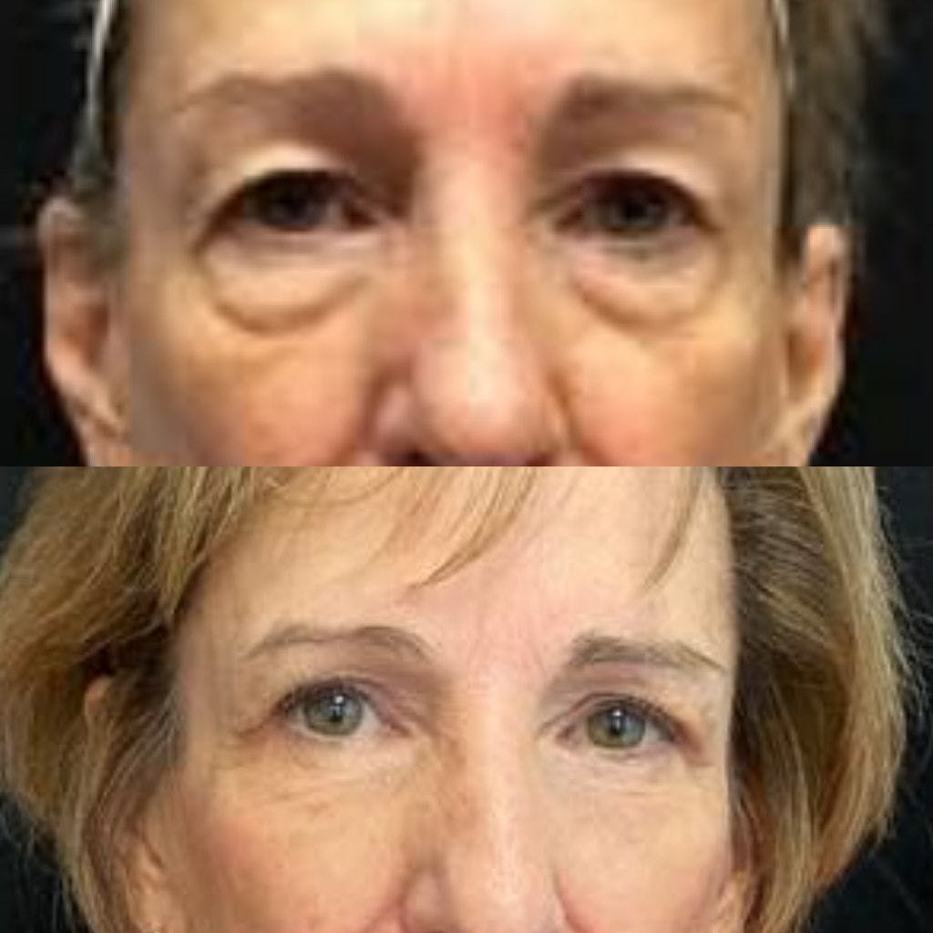 Upper Blepharoplasty Gallery - Patient 8523564 - Image 1
