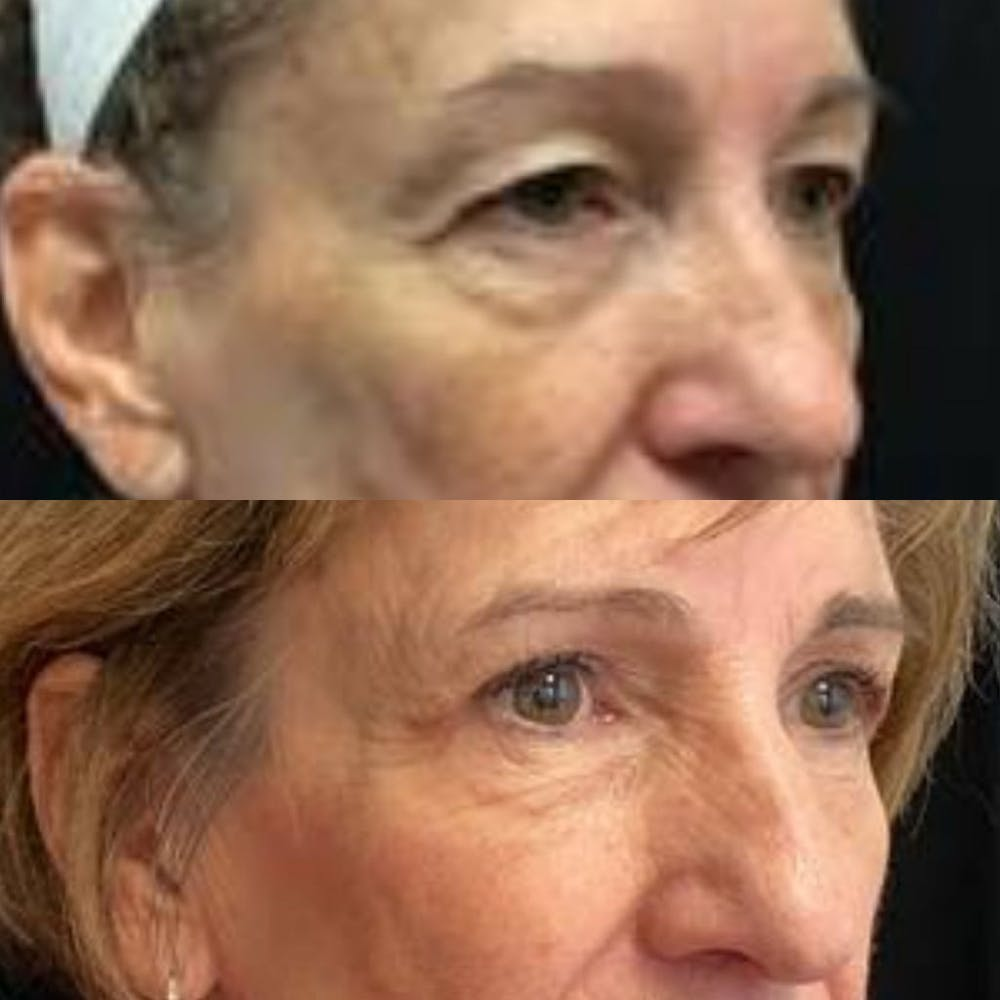 Upper Blepharoplasty Gallery - Patient 8523564 - Image 2