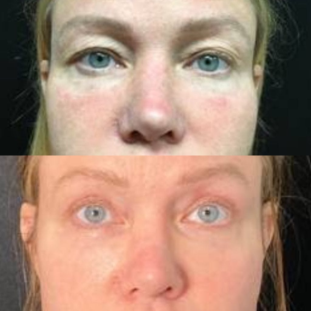 Upper Blepharoplasty Gallery - Patient 8523570 - Image 1
