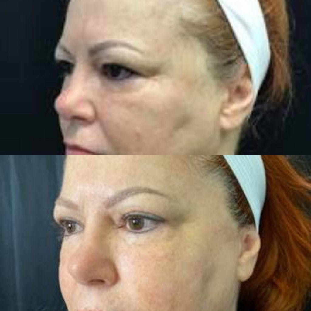 Upper Blepharoplasty Gallery - Patient 8523581 - Image 1