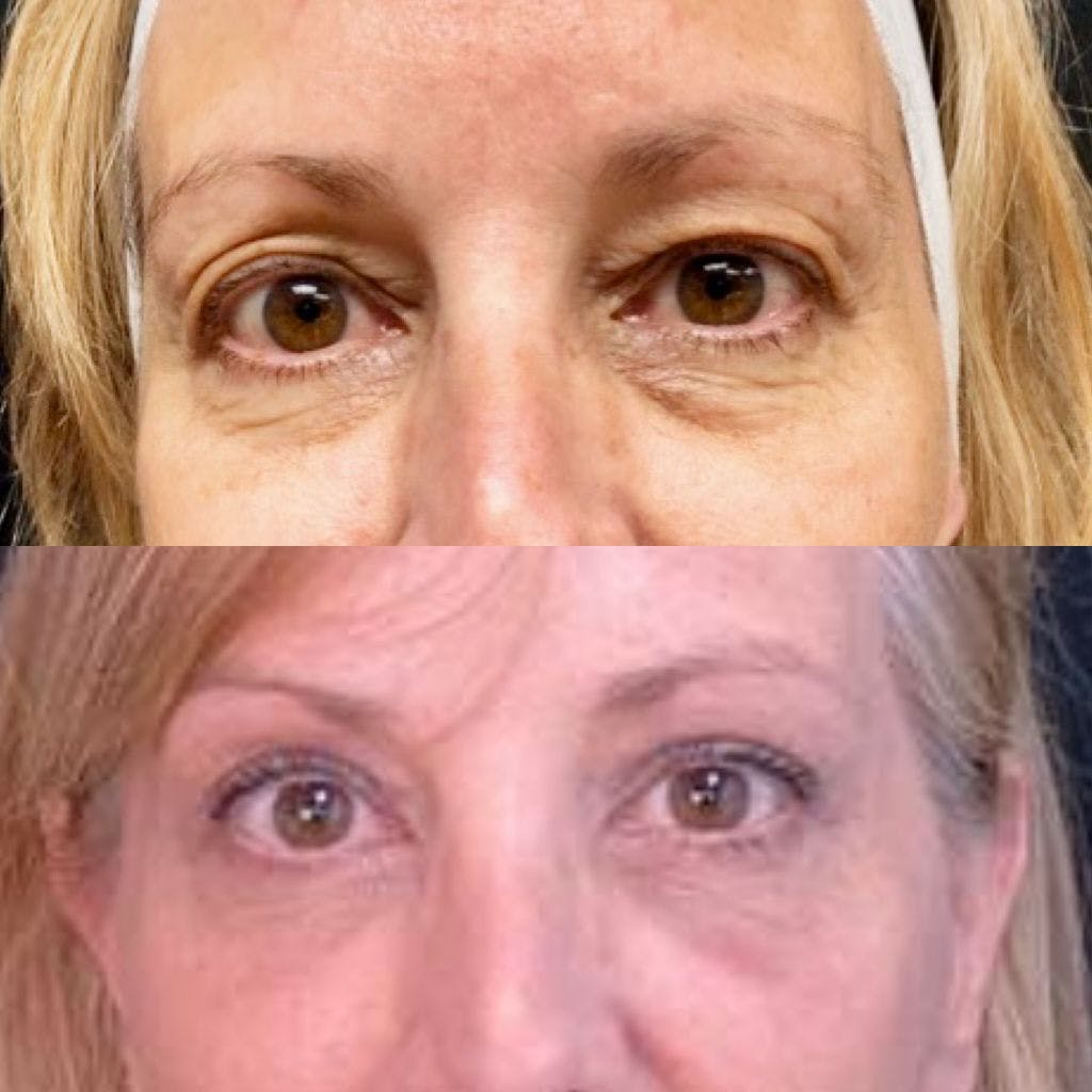 Upper Blepharoplasty Gallery - Patient 8523587 - Image 1