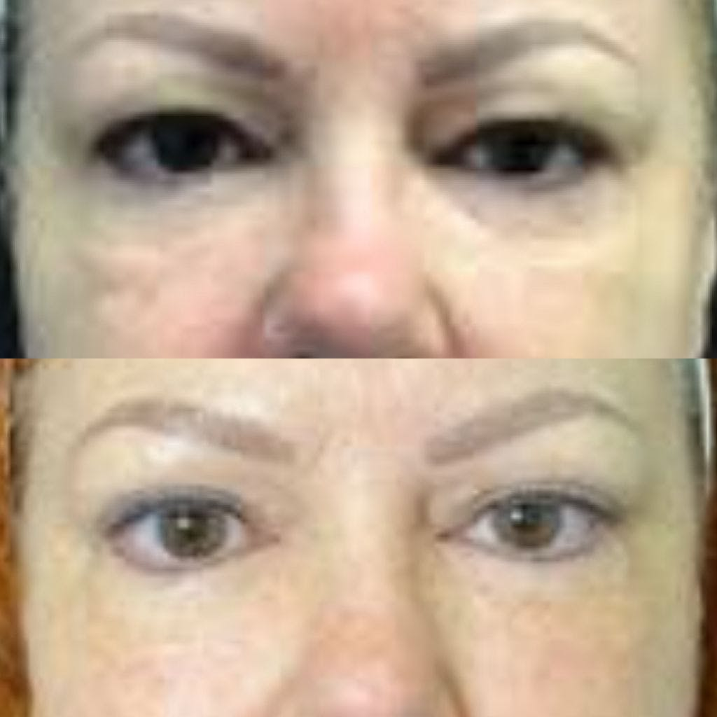 Upper Blepharoplasty Gallery - Patient 8523591 - Image 1